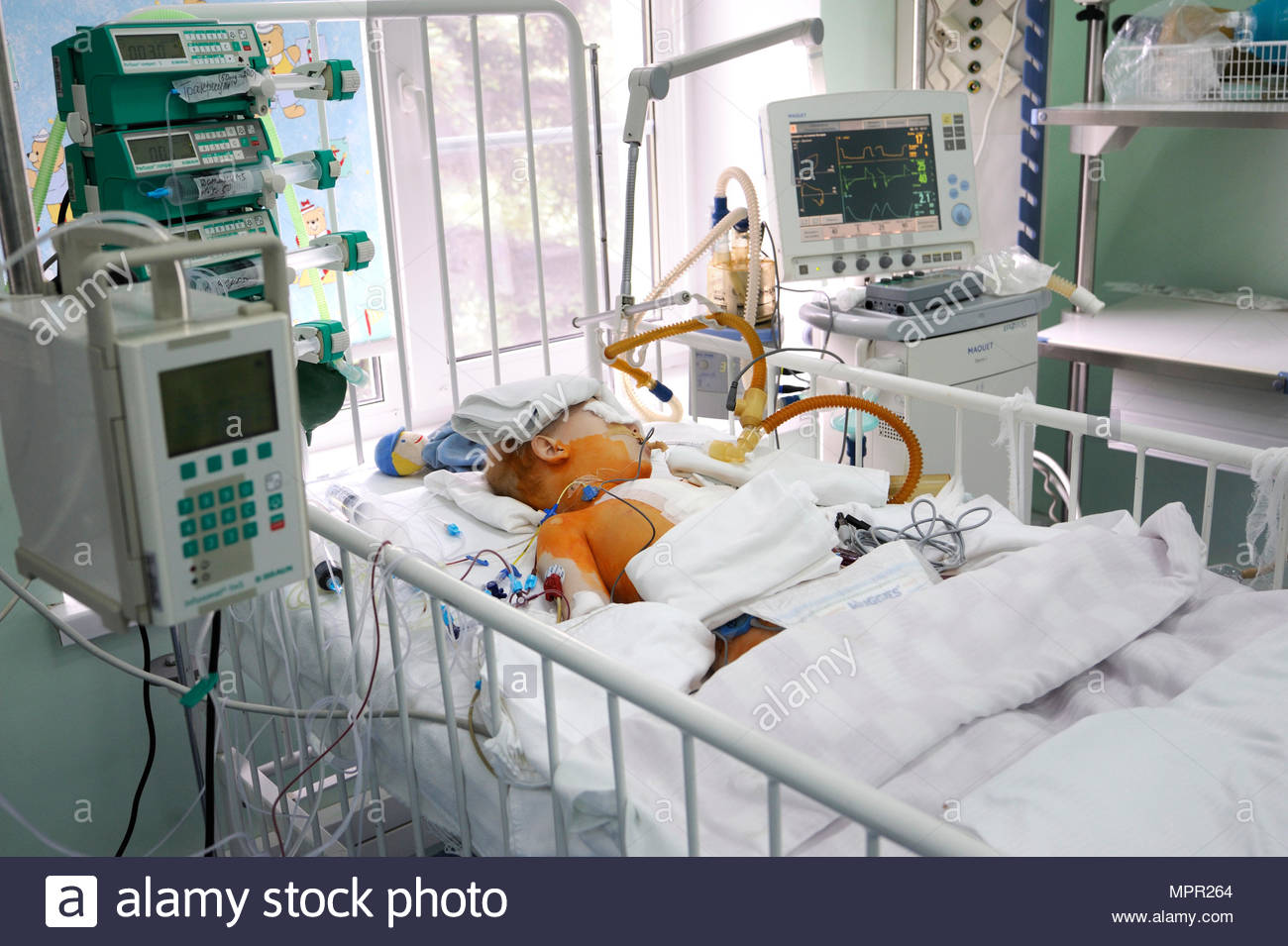 Intensive care unit. Baby laying on a hospital bed and attached to a reviving apparatus.Children's Cardiac Center. May 18,2018. Kiev,Ukraine - Stock Image