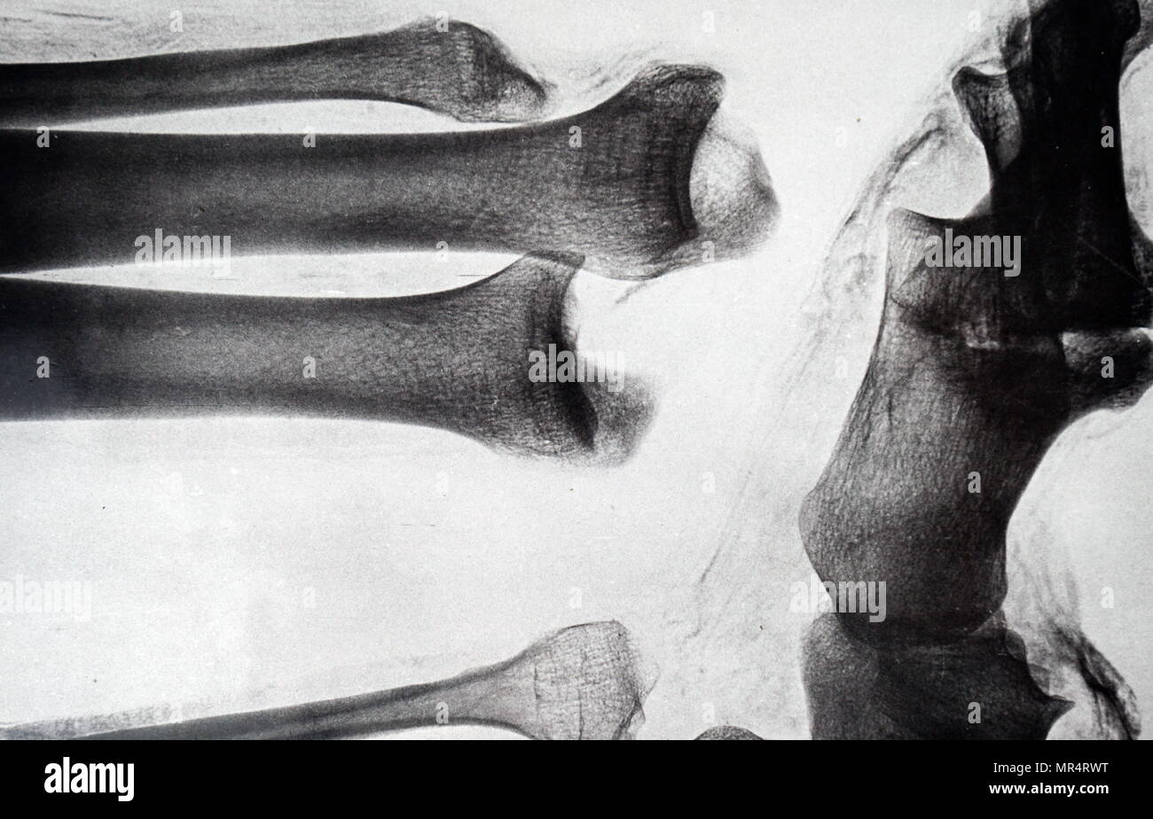 X-ray imaging of the leg of an Egyptian mummy. Dated 19th century - Stock Image