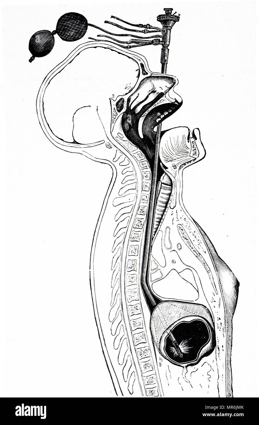 Engraving depicting an early gastroscope by Leitner of Vienna. Prisms at the bend enabled the stomach to be observed. It contained a fine channel through which air could be pumped by India rubber balls, top, to inflate the stomach. Dated 19th century - Stock Image