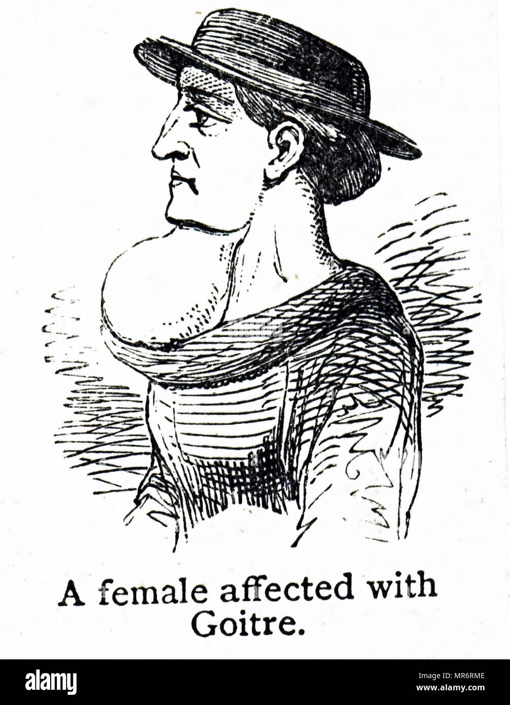 Engraving depicting a woman affected with Goitre. Goitre is the swelling of the neck resulting from an enlarged thyroid gland. Dated 19th century - Stock Image