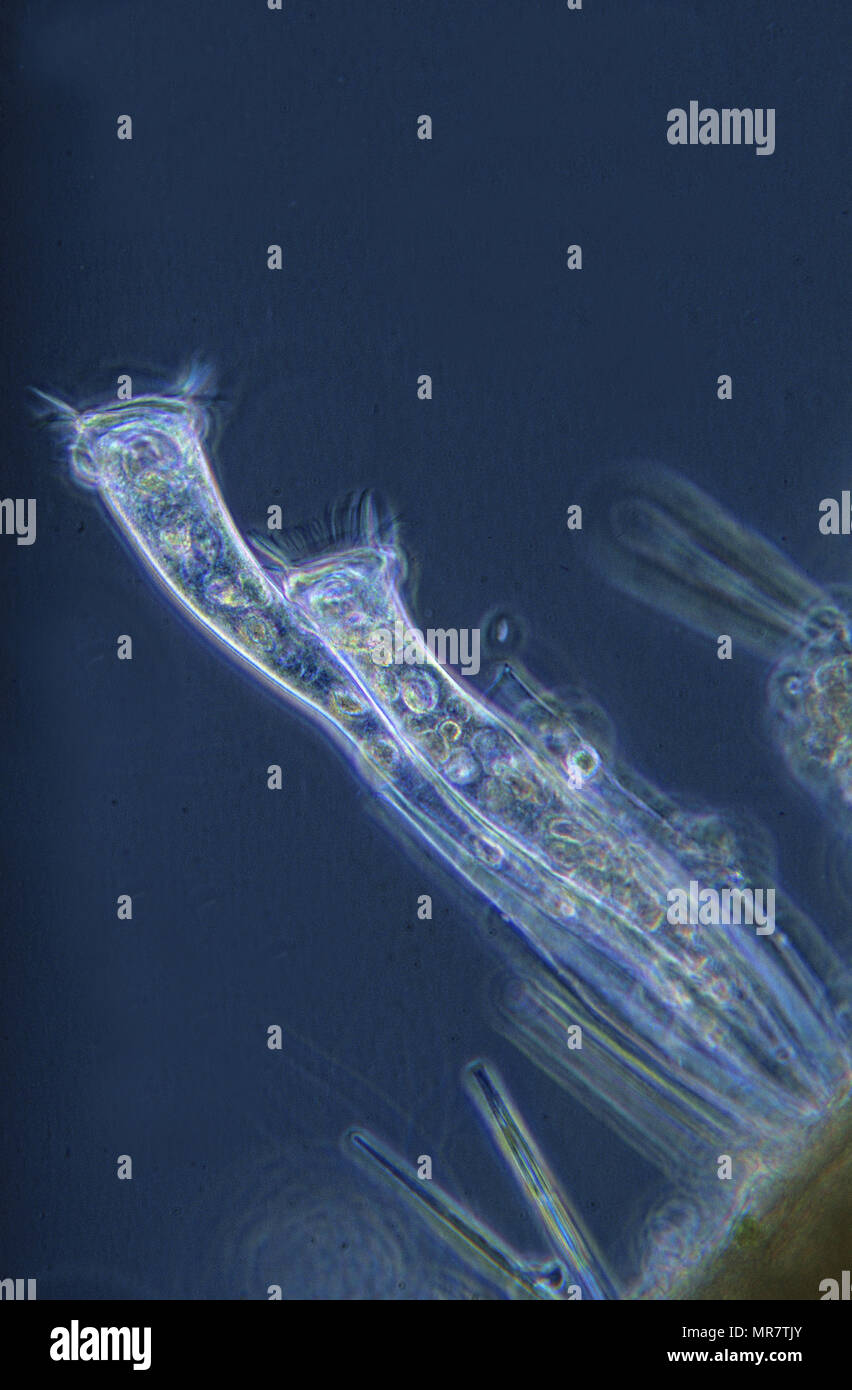 Ciliata.Protozoans.Optic microscopy Stock Photo