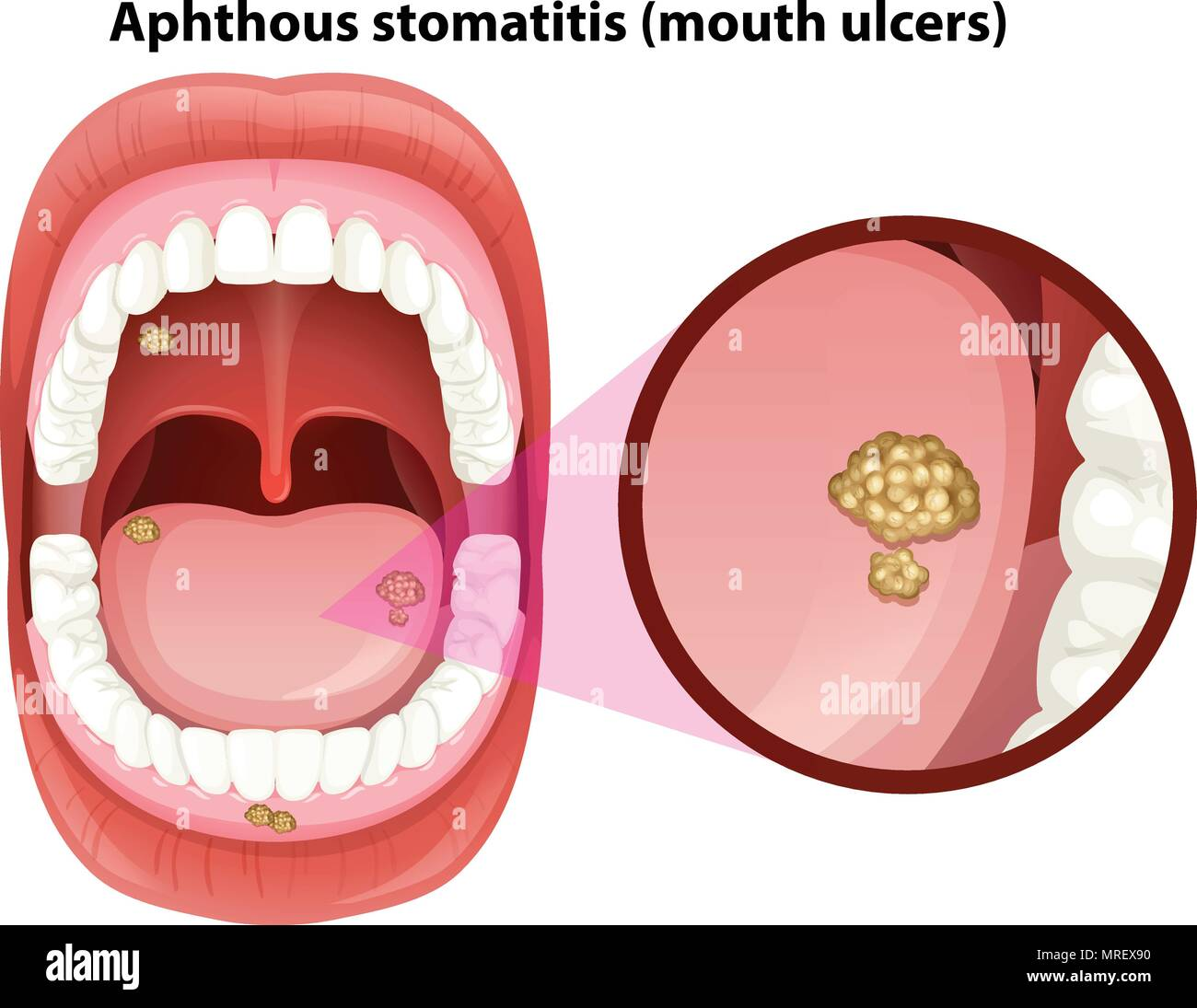 Human Mouth Anatomy of Ulcers illustration Stock Vector Art ...