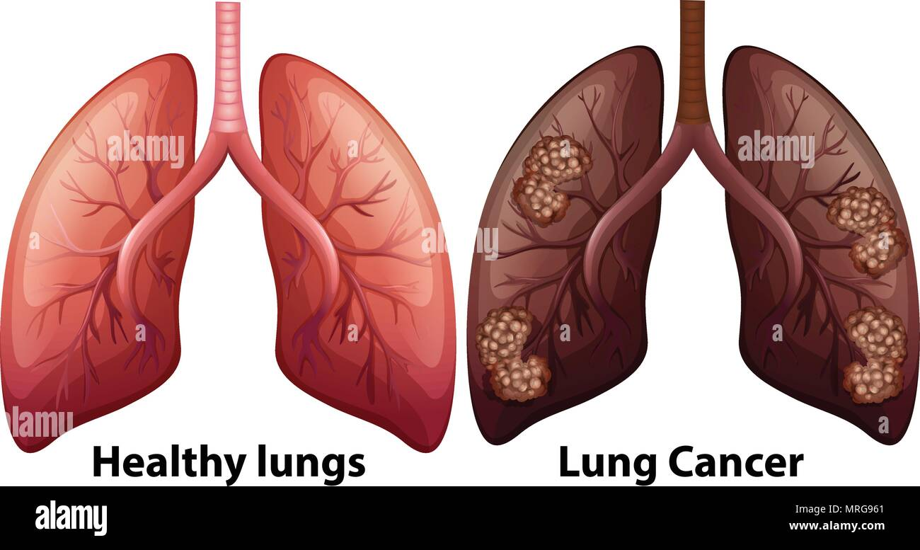 Human Anatomy Of Lung Condition Illustration Stock Vector Art