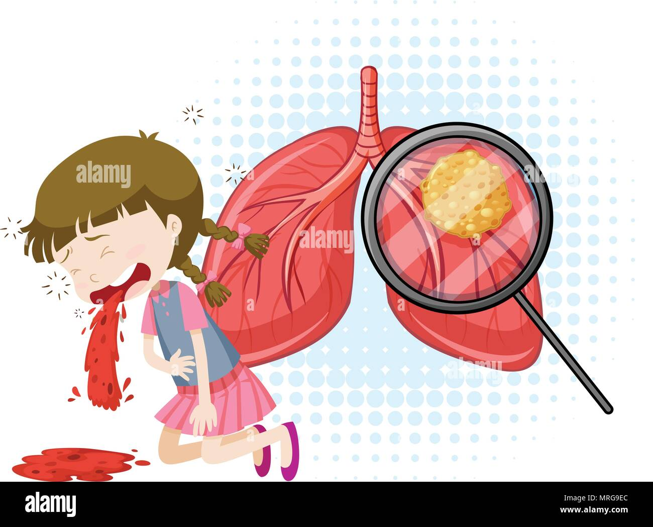 A Vector of  Tuberculosis illustration - Stock Vector