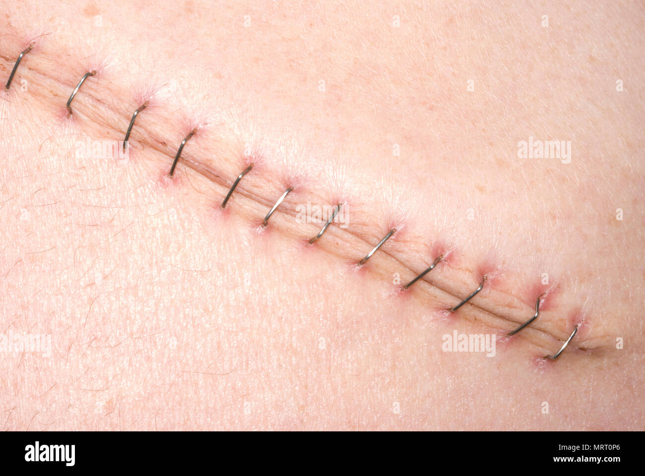 Rooftop Incision - Stock Image