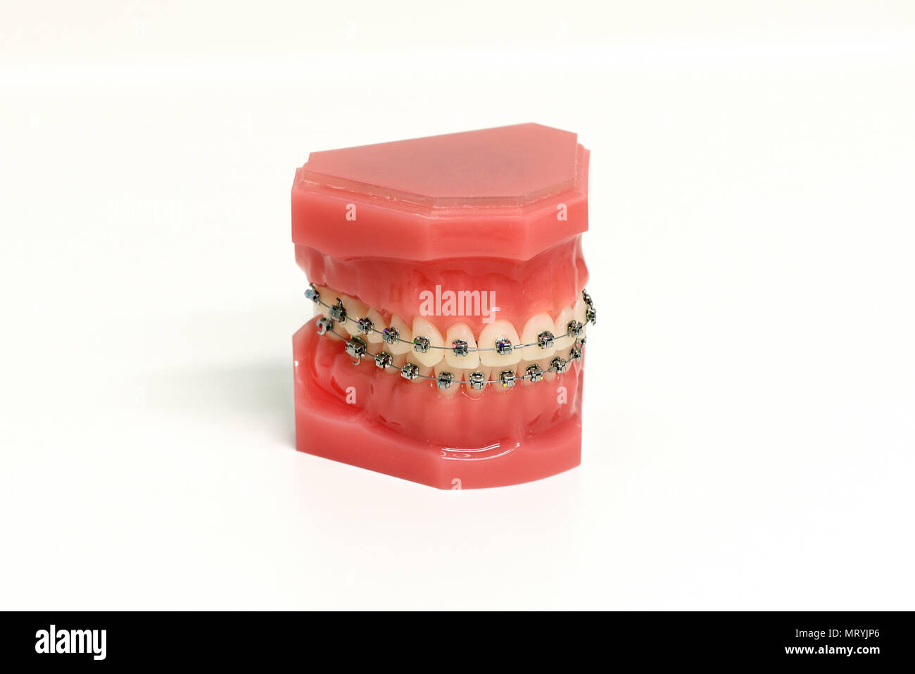 Orthodontic mold of a dental appliance showing a set of upper and lower metal braces attached to teeth for corrective straightening and alignment over - Stock Image