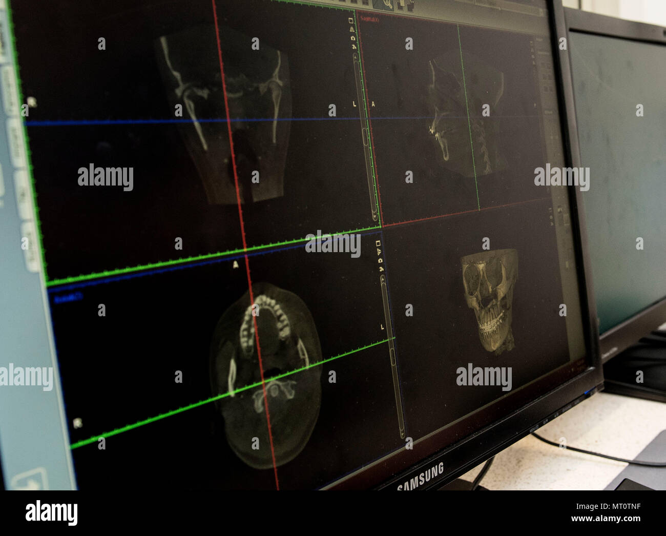 Images from a dental cone-beam computed tomography machine are displayed on a monitor, July. 14, 2017 at David Grant USAF Medical Center, Travis Air Force Base, Calif. These X-ray images give doctors the ability to observe and manipulate a fully 3 dimensional scan of the skull and teeth of a patient, precisely pinpointing problem areas. Care offered at the 60th Dental Squadron includes general dentistry, periodontics, orthodontics, endodontics, pediatric dentistry, prosthodontics, oral and maxillofacial surgery. (U.S. Air Force photo by Heide Couch) - Stock Image