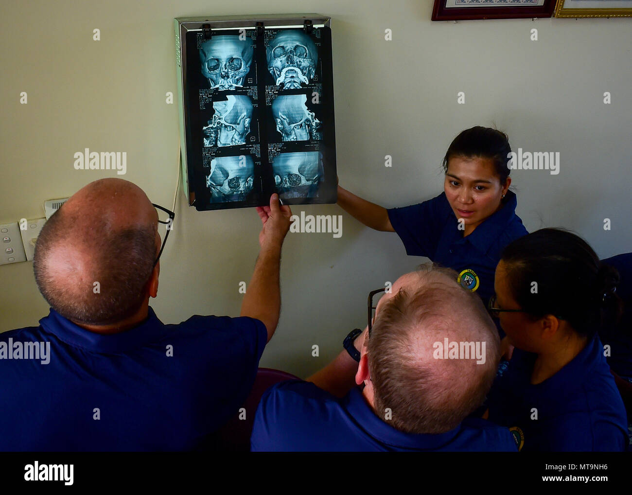 180518-N-QV906-386 NHA TRANG, Vietnam (May 18, 2018) U.S. Navy medical professionals assigned to Military Sealift Command hospital ship USNS Mercy (T-AH-19) inspect a surgical candidate's 3-dimensional reconstruction scan during a plastic surgery consultation.  Mercy is currently deployed in support of Pacific Partnership 2018 (PP18). PP18's mission is to work collectively with host and partner nations to enhance regional interoperability and disaster response capabilities, increase stability and security in the region, and foster new and enduring friendships across the Indo-Pacific Region. Pa - Stock Image