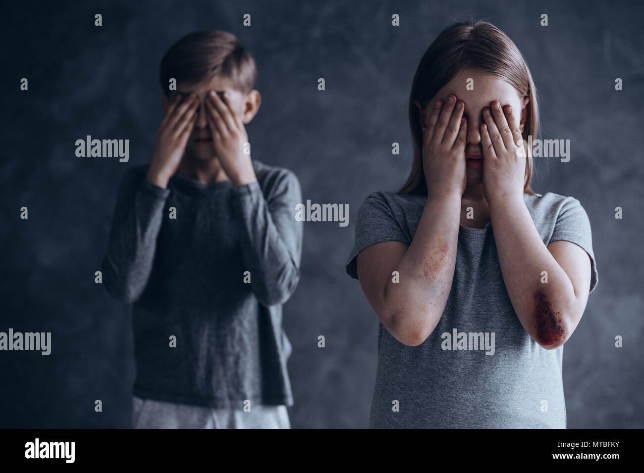 Injured and terrified siblings from dysfunctional family - Stock Image