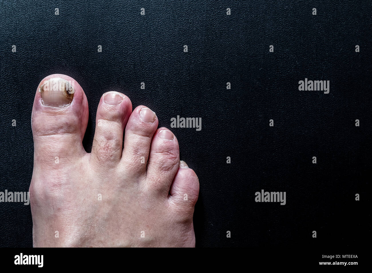 A toenail on a foot that has been bruised - Stock Image