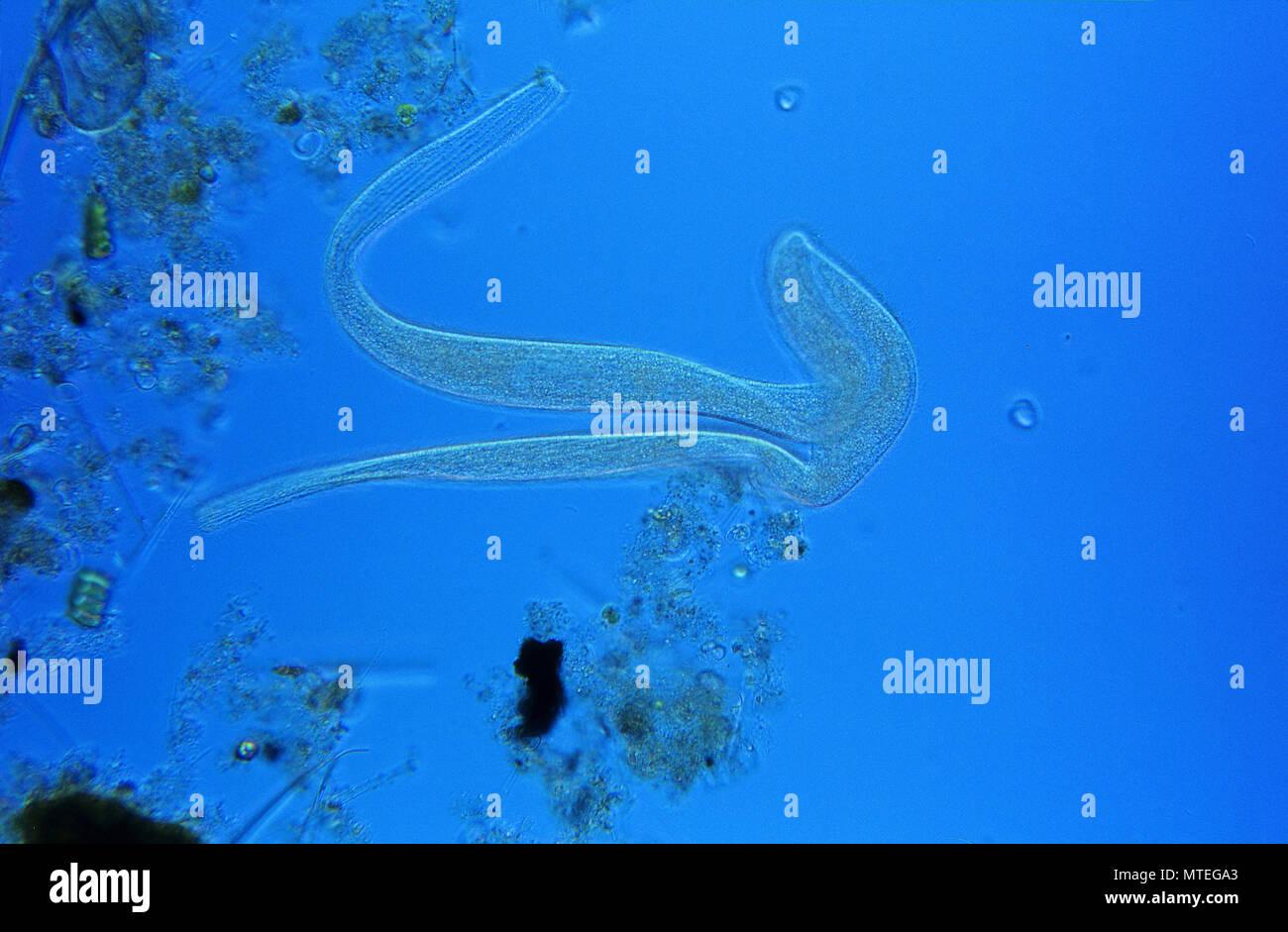 Conjugation.Cell division.Ciliata.Protozoan.Optic microscopy - Stock Image