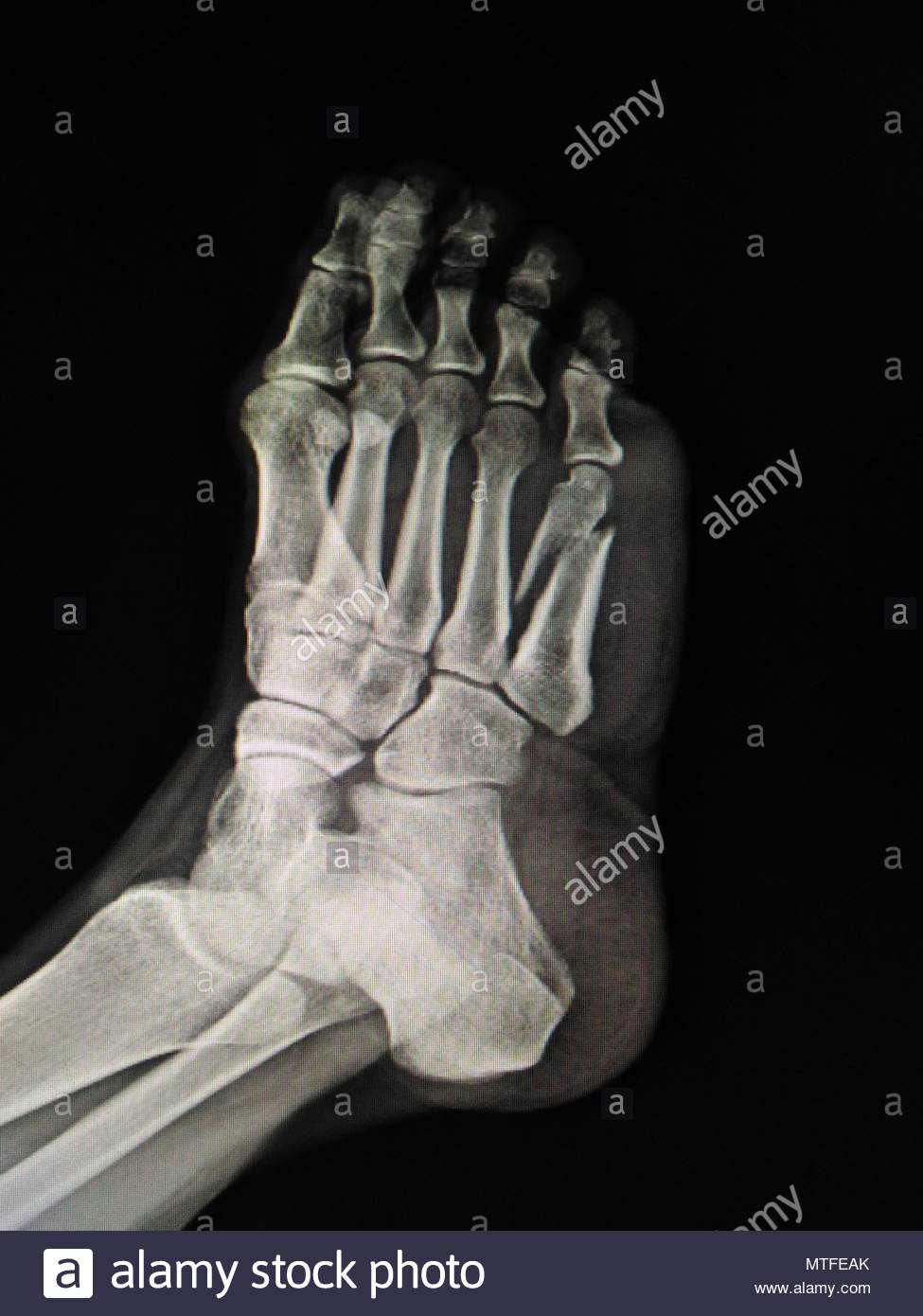 Anatomy Bone Broken Medicine Picture Stock Photos & Anatomy Bone ...