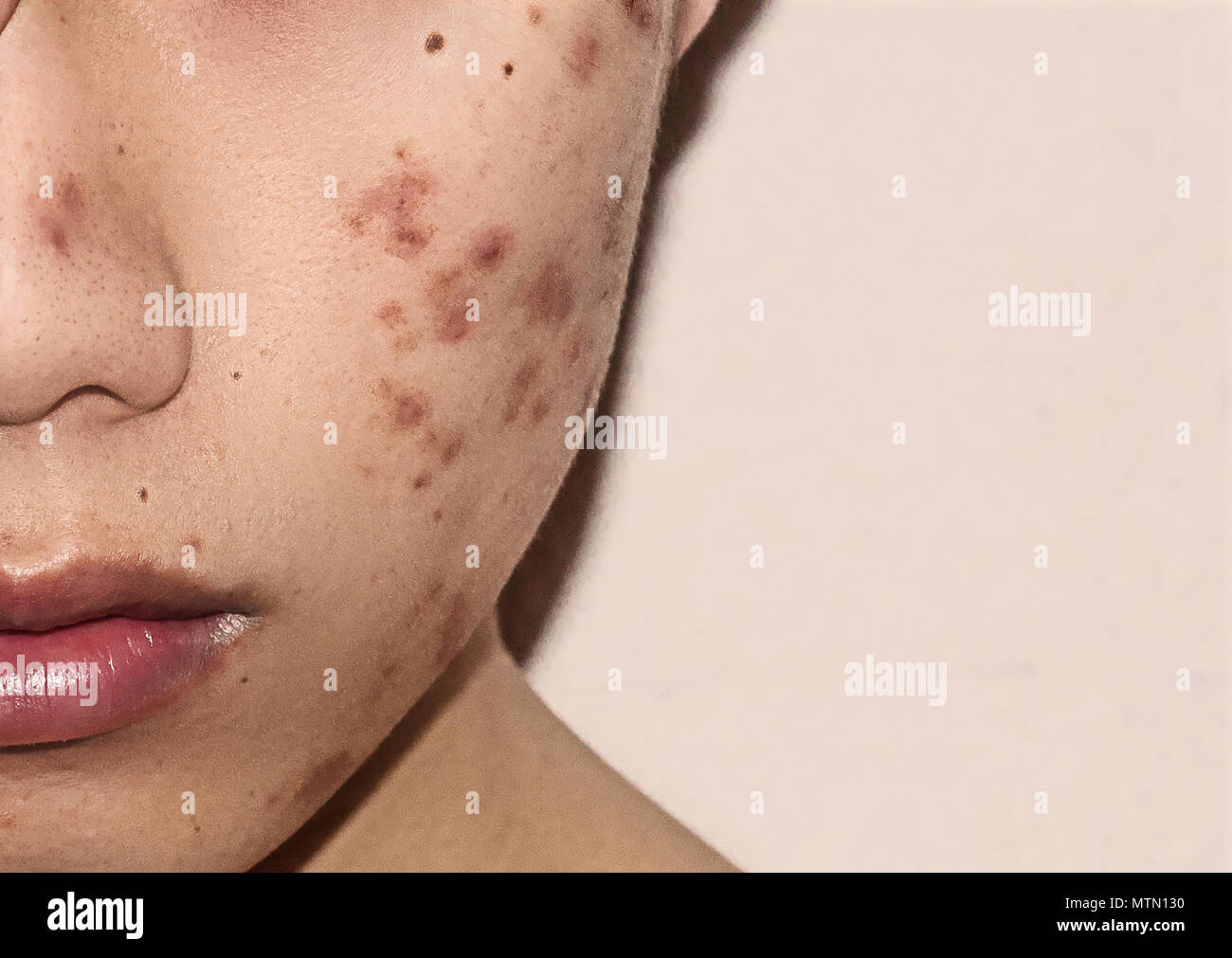 how to clear up acne scars on face