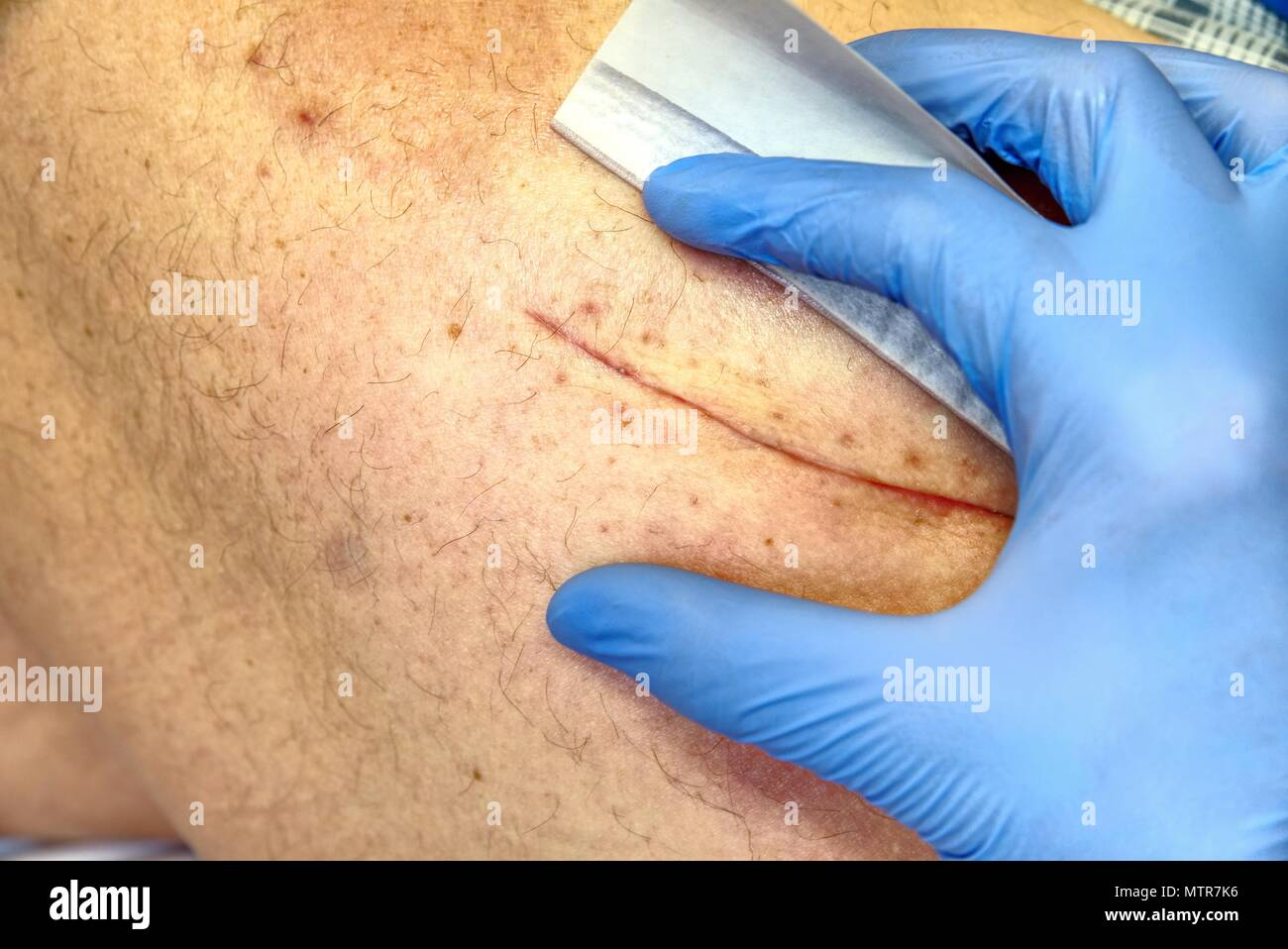 Selective focus of old male human leg with scar.  Patient with a long scar after a hip joint surgery. - Stock Image