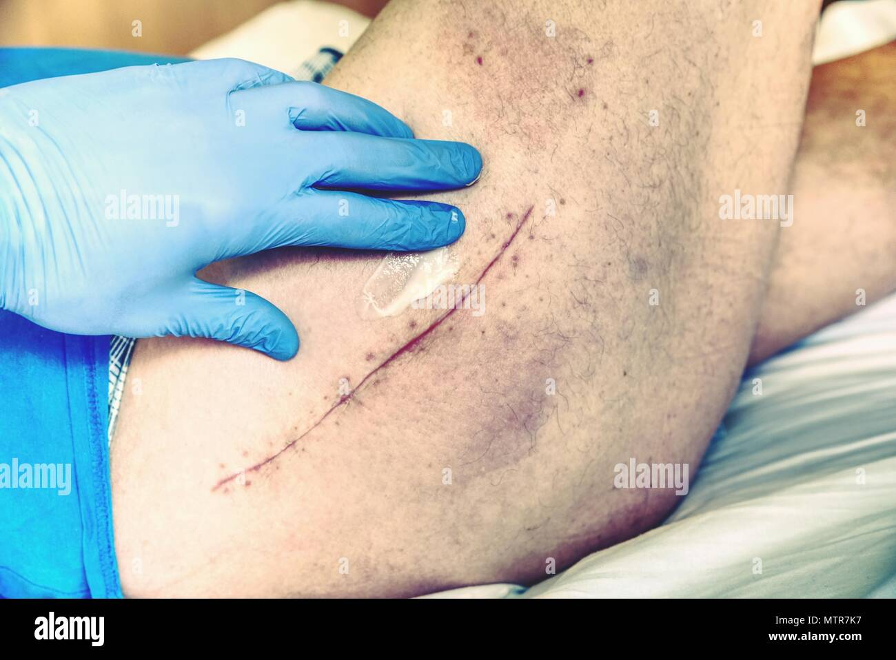 Old Human leg with postoperative scar of hip joint surgery.  Detail of skin with deep chirurgical cut. Health care in hospital. - Stock Image