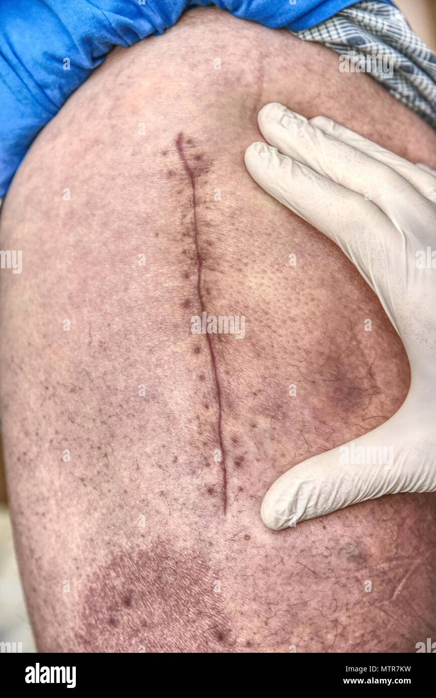 Patient with a fresh long scar after a hip surgery. Macro,  Human leg with bloody scar from hip joint surgery. - Stock Image