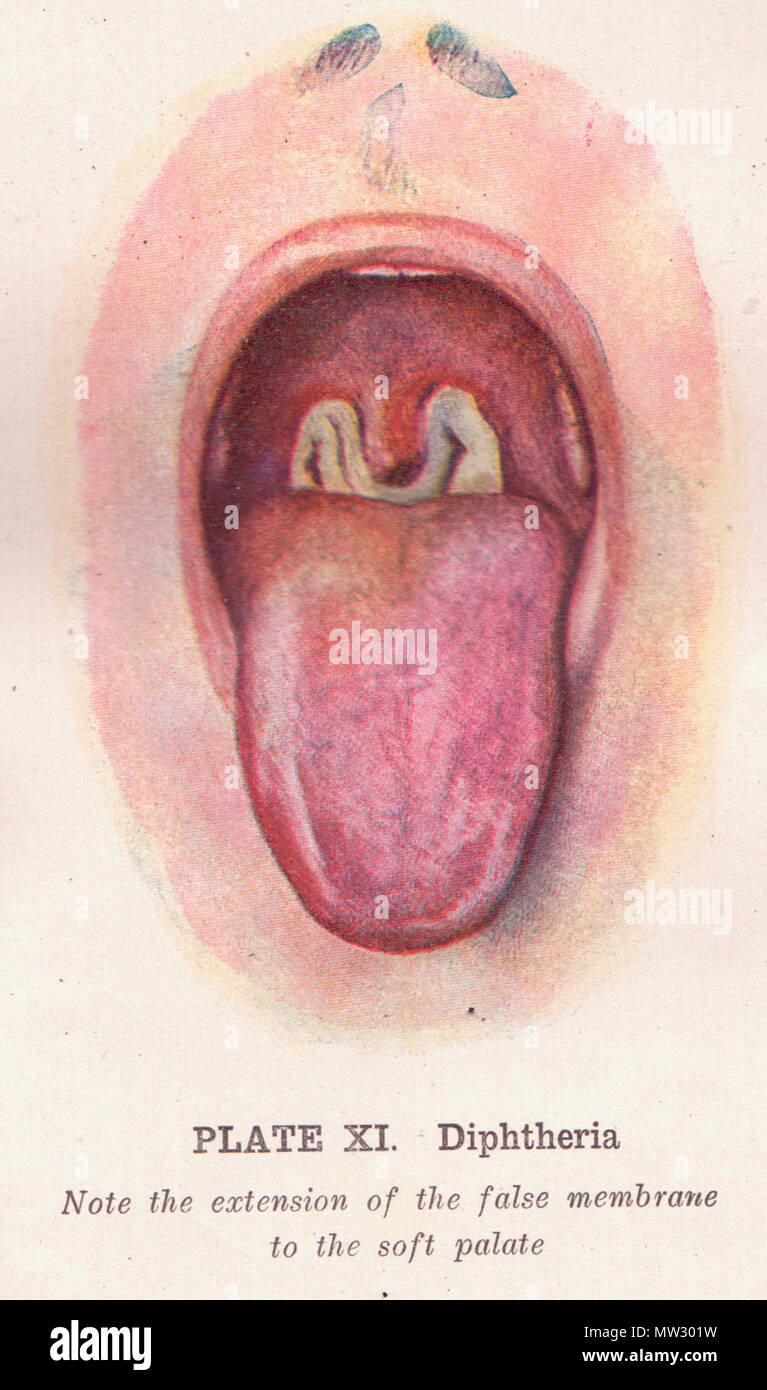 English: Between pages 270 and 271, this illustration of a throat ...