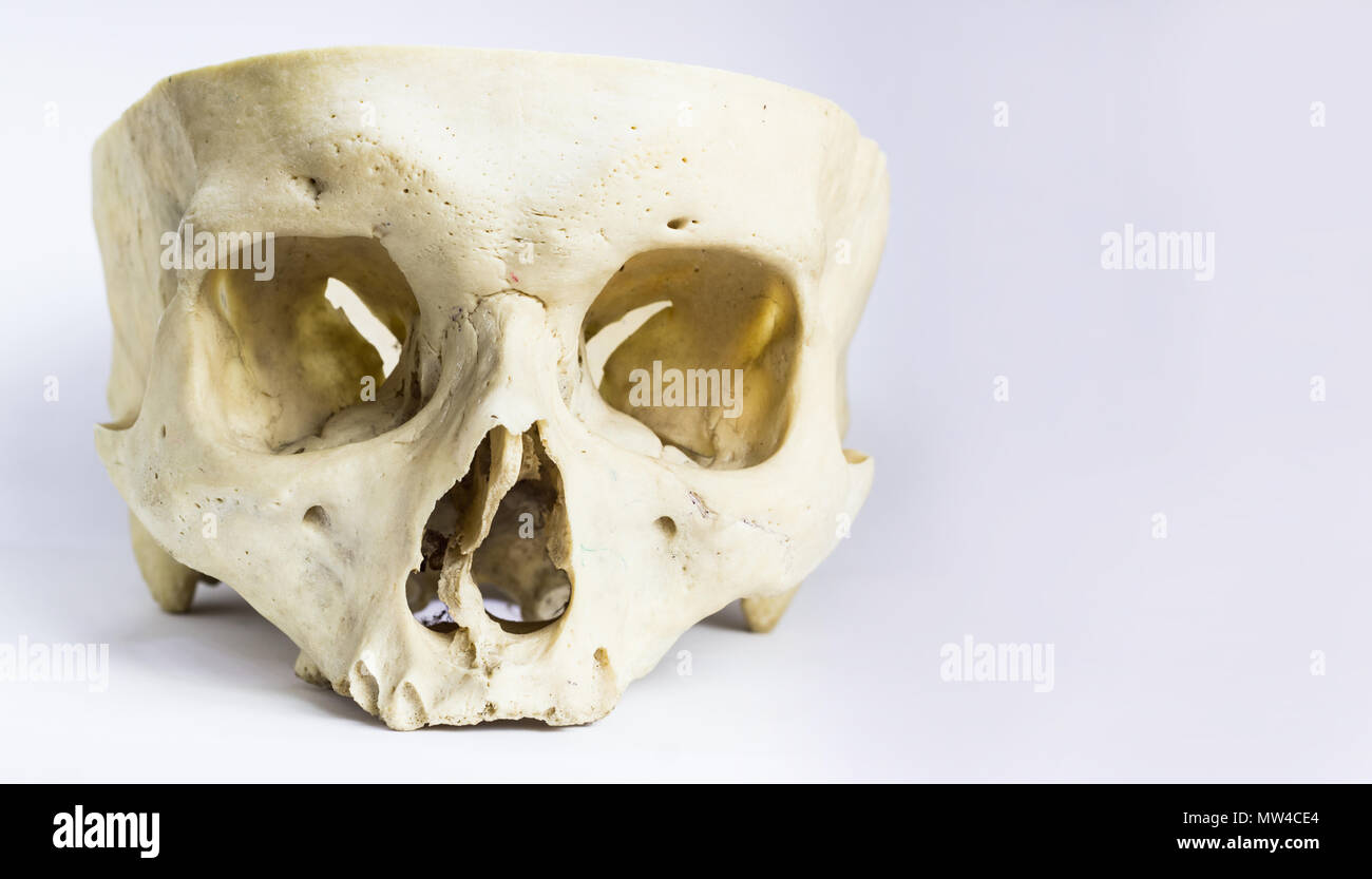 Front Anatomical View Of Human Skull Bone Without The Vault Of The