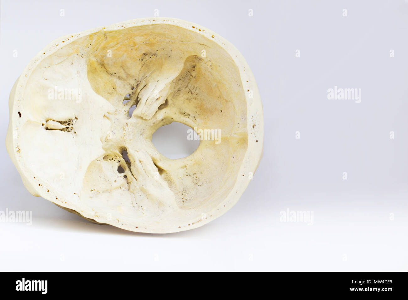 top view of base of the human skull showing sphenoid bone and ...