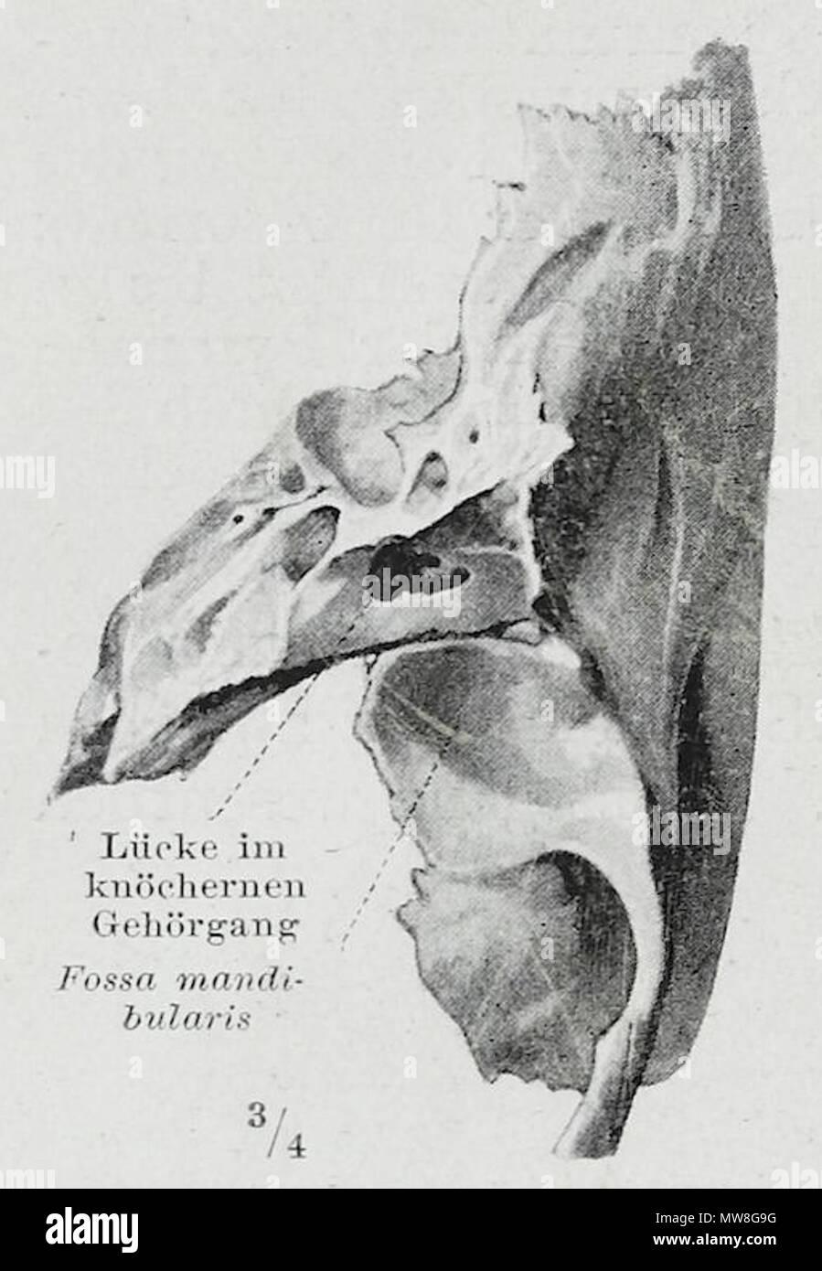 Ungewöhnlich Anatomie Des Gehörgangs Bilder - Anatomie Von ...