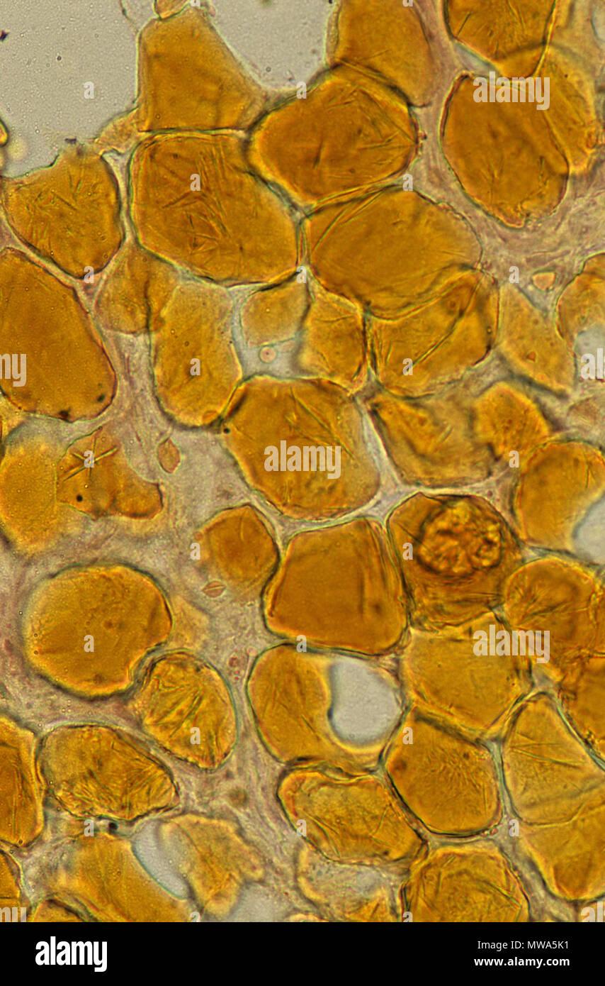 Adypocites.Adipose tissue.150x - Stock Image