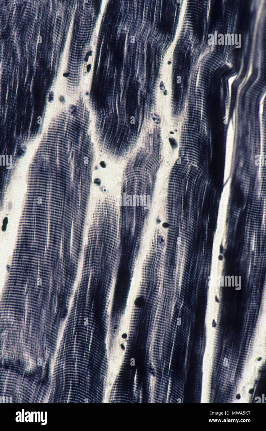 Striated muscular tissue.140x - Stock Image