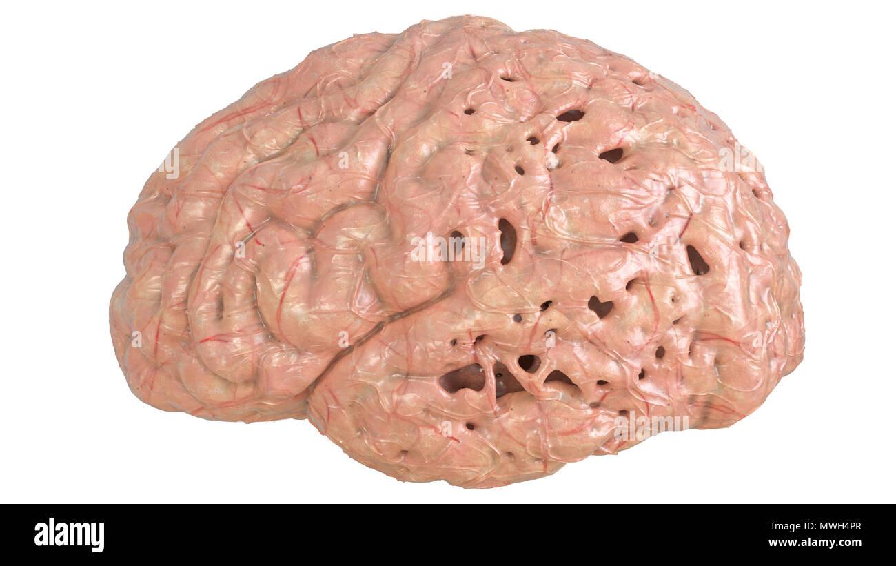 Brain in severe brain disease, Dementia, Alzheimer, Chorea Huntington - 3D Rendering - Stock Image