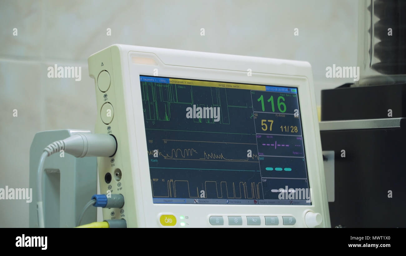 Electrocardiogram in hospital surgery operating theater emergency