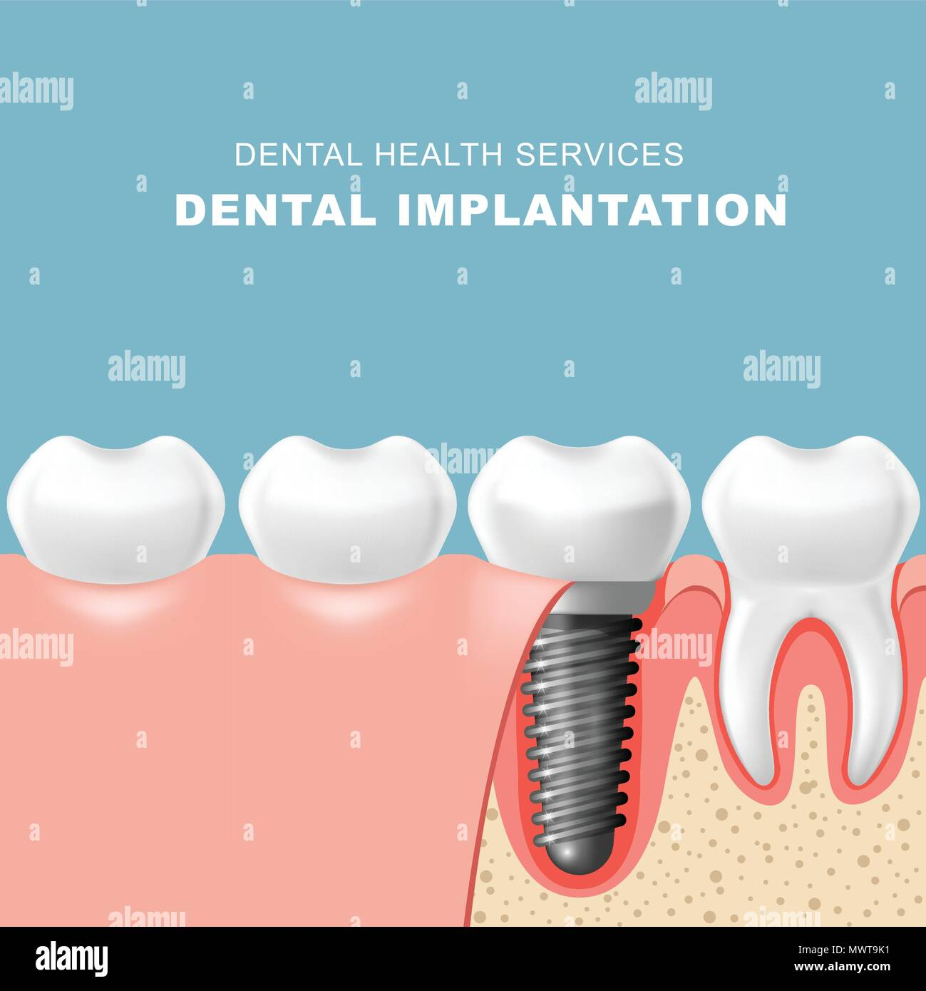 Teeth and dental implantat inserted into gum - tooth implantation - Stock Image