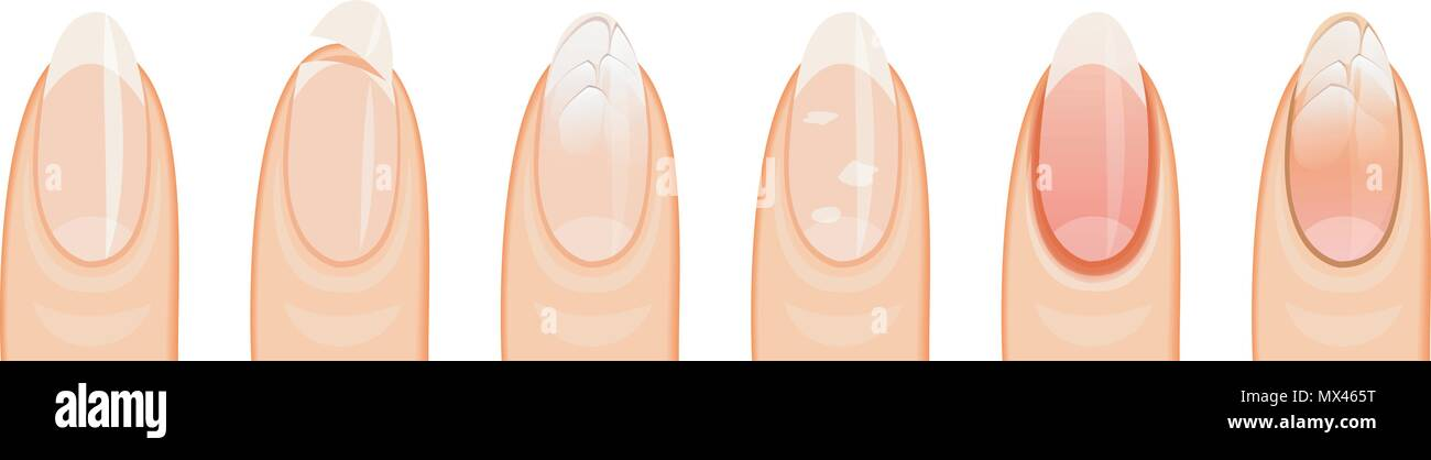 illustration nails, healthy, damage, sickly, white background - Stock Image