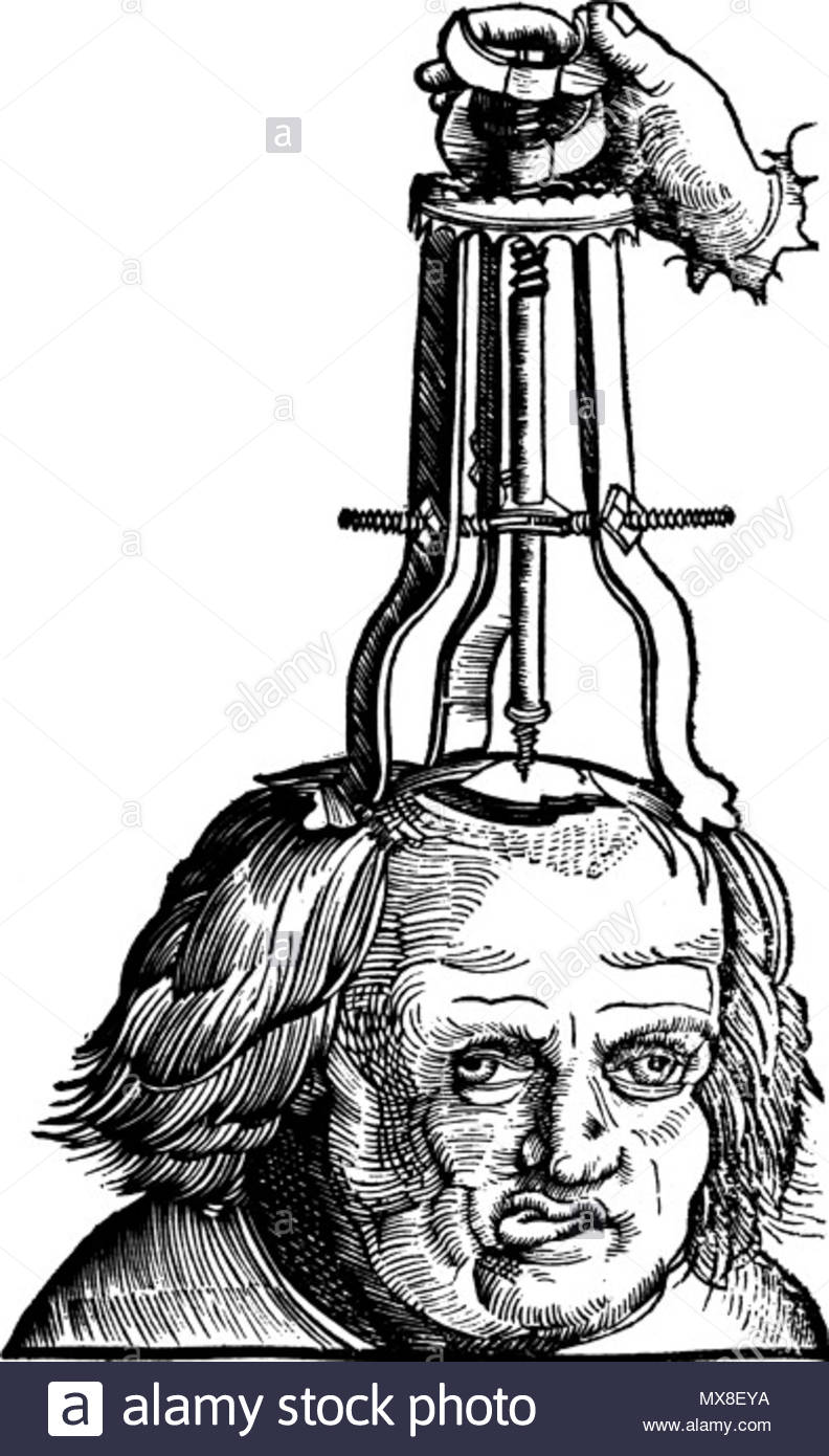 . Illustration in a 1517 book showing a then method for treating a depressed skull fracture . 1517. Uploaded February 7, 2008. Von Gersdorf, Hans. Feldbuch der Wundartzney, 1527. Wellcome Library, London. 183 Elevating depressed skull fracture Stock Photo