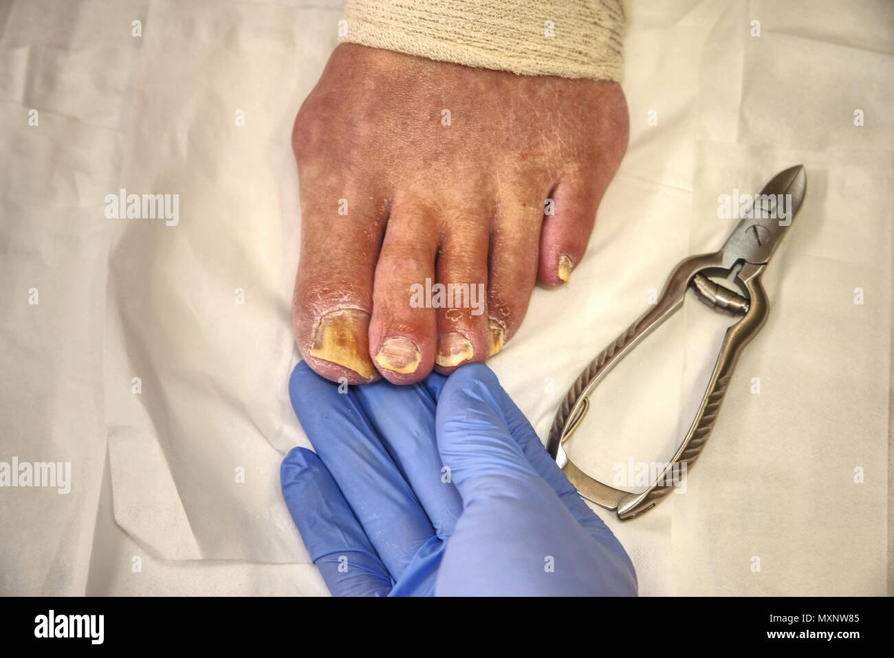 Pedicure stages. Podology, cutting skins. Professional pedicure in the hospital. Nail clipping at the feet. - Stock Image