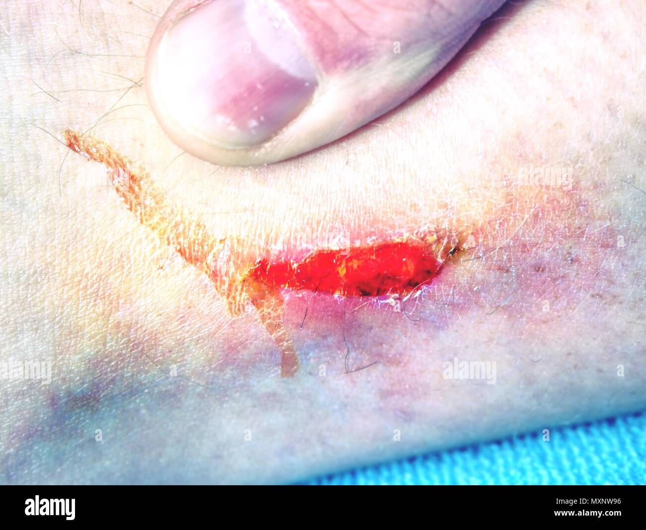 Fresh bloody place in skin. Nasty looking bruise on leg, detailed shot. The open wound before plaster covering in  ambulancy - Stock Image