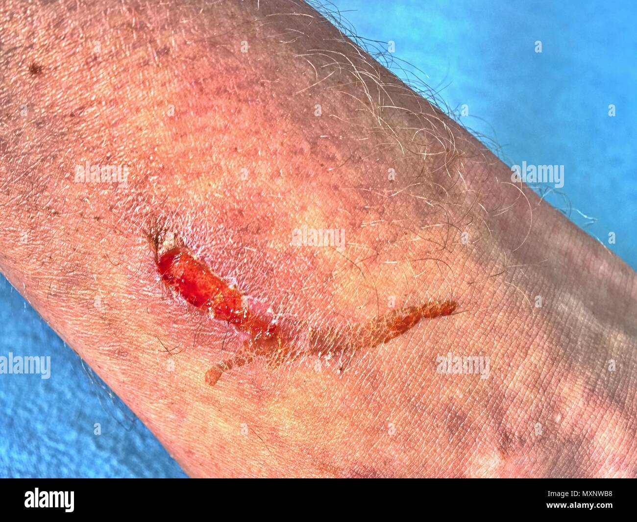 Wound on leg after a traffic accident. Hurt adult body. Wet bloody place. - Stock Image