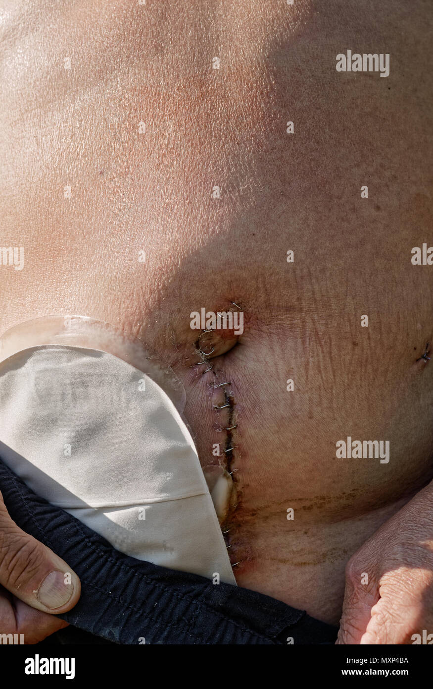 Adult caucasian man with temporary stoma after bowel surgery - Stock Image