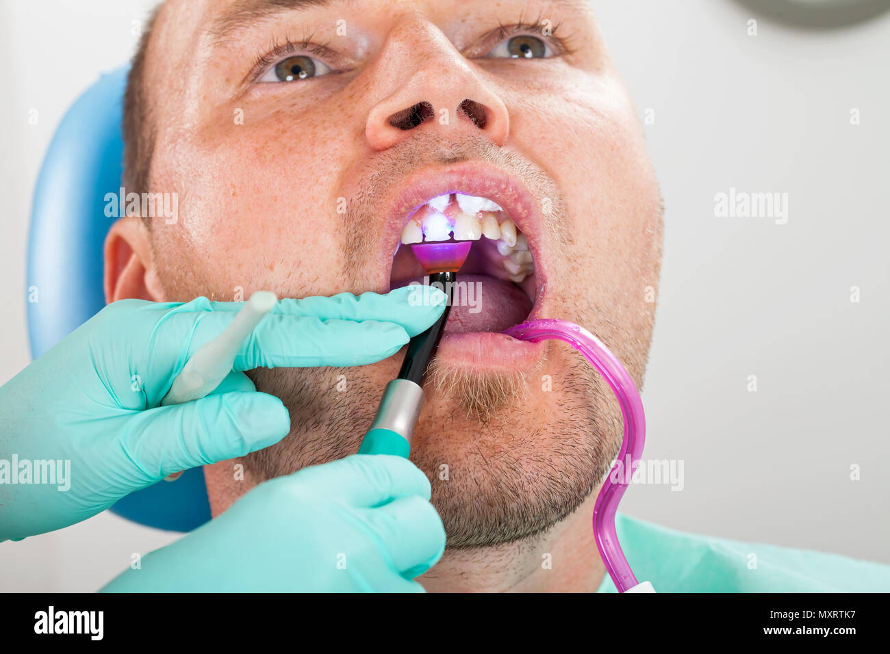 Dental treatment with polymerization lamp in oral cavity. Male patient close up - Stock Image