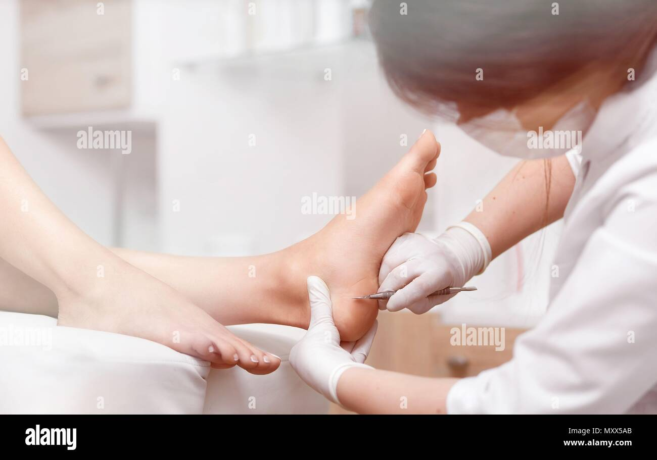 Profeesional doctor polish callus and corn on feet of client. - Stock Image