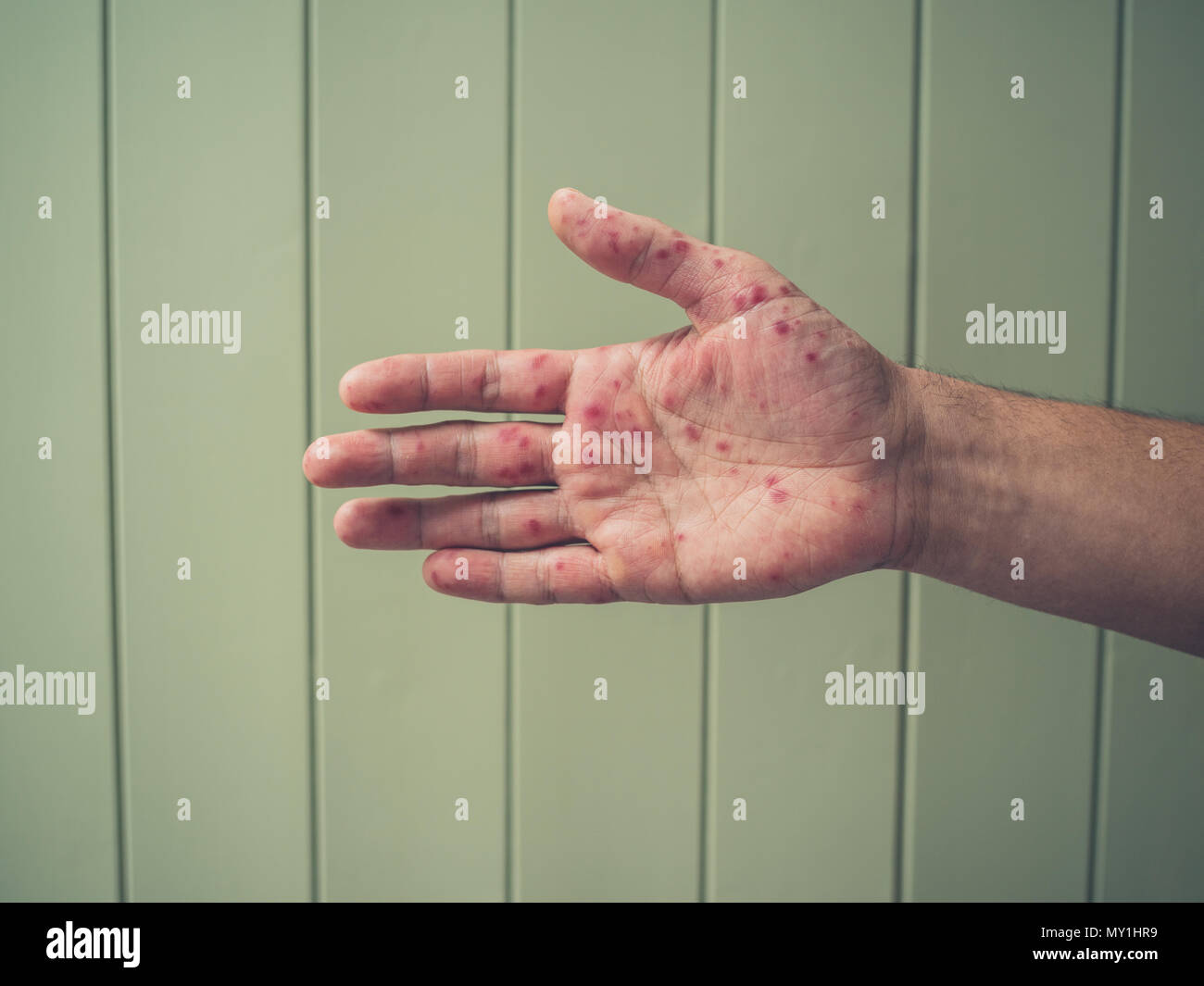 A young man is showing his hand with spots and rash from hand foot and mouth disease - Stock Image