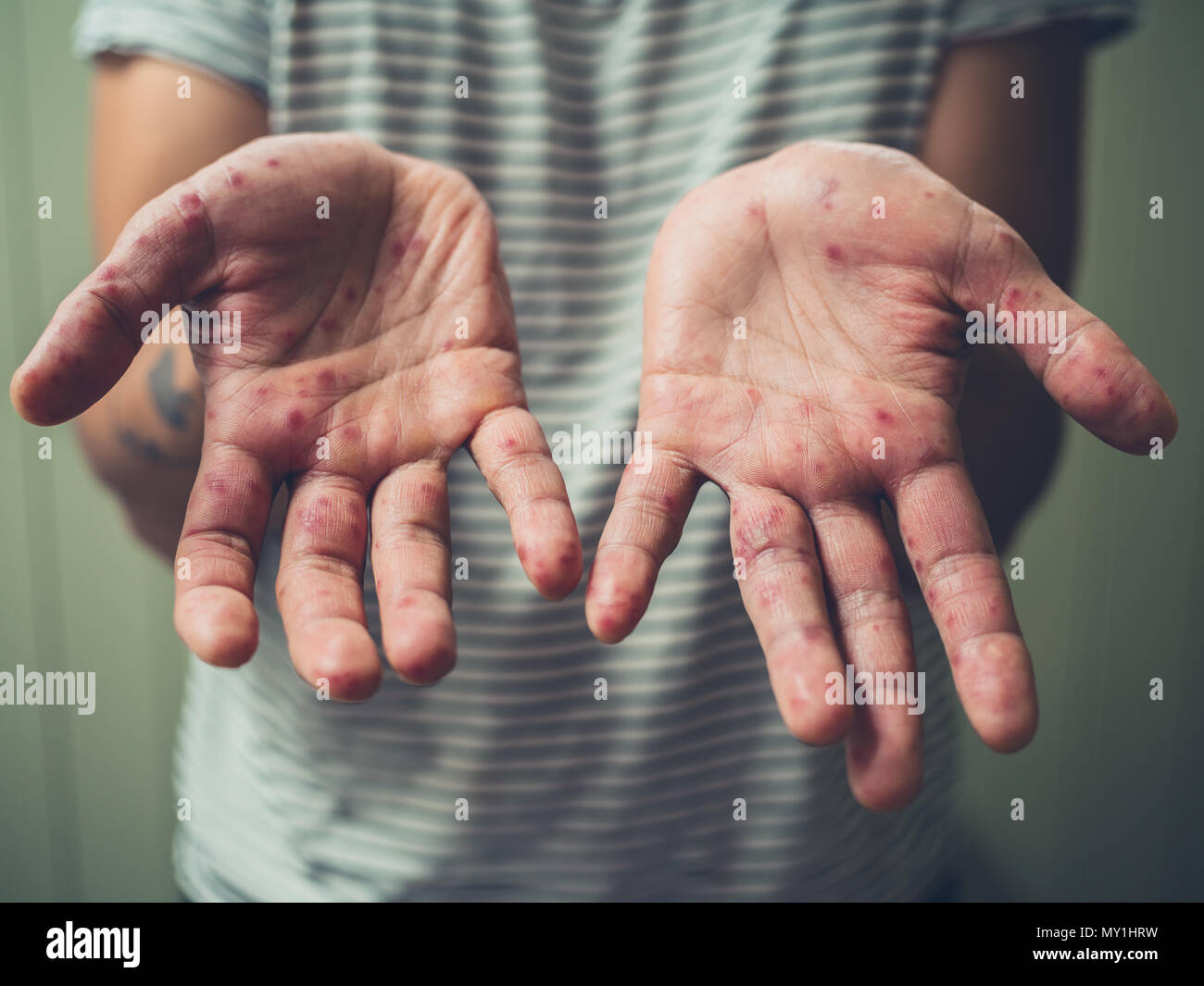 A young man is showing his hands with spots and rash from hand foot and mouth disease - Stock Image