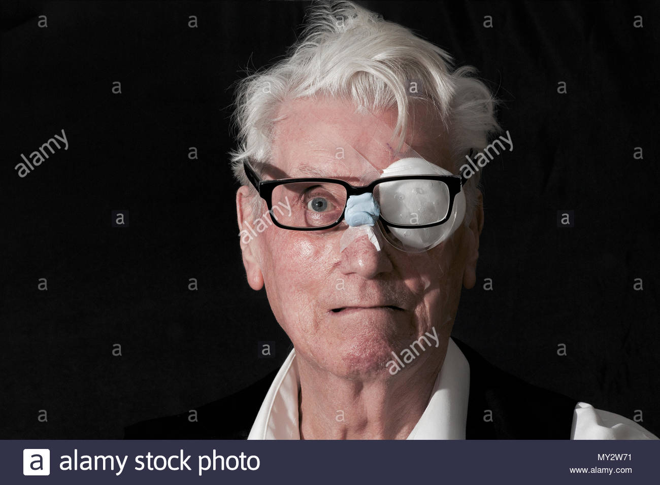 Humour, a Caucasian male patient with a woebegone expression wearing an eye patch following a cataract procedure on his left eye, and wearing spectacl - Stock Image