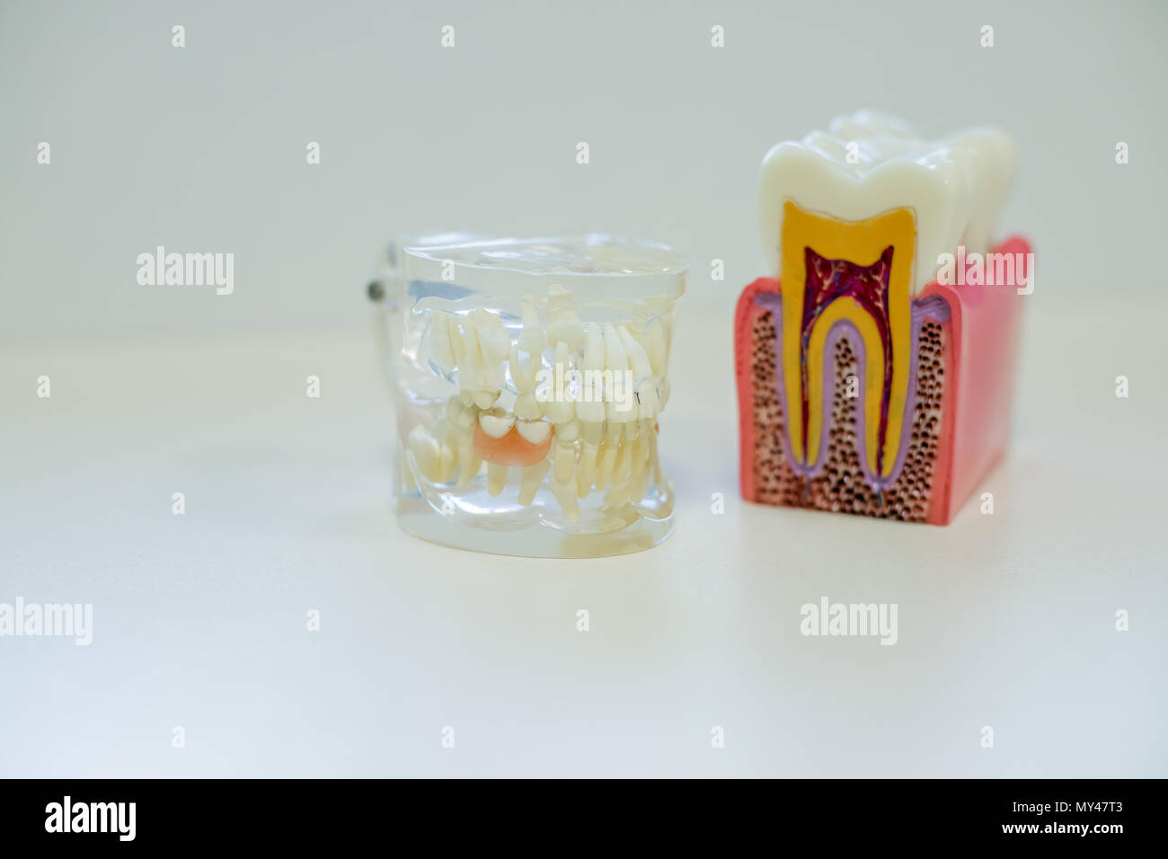 Dental Implant Design Concept Stock Photos & Dental Implant Design ...