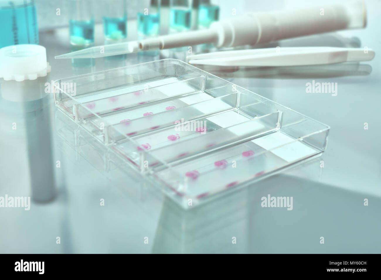 Blurred background for histopathology-related design. Tissue sections, battery of jars with fixed tissue samples on glass. Toned image, text space. Sh - Stock Image