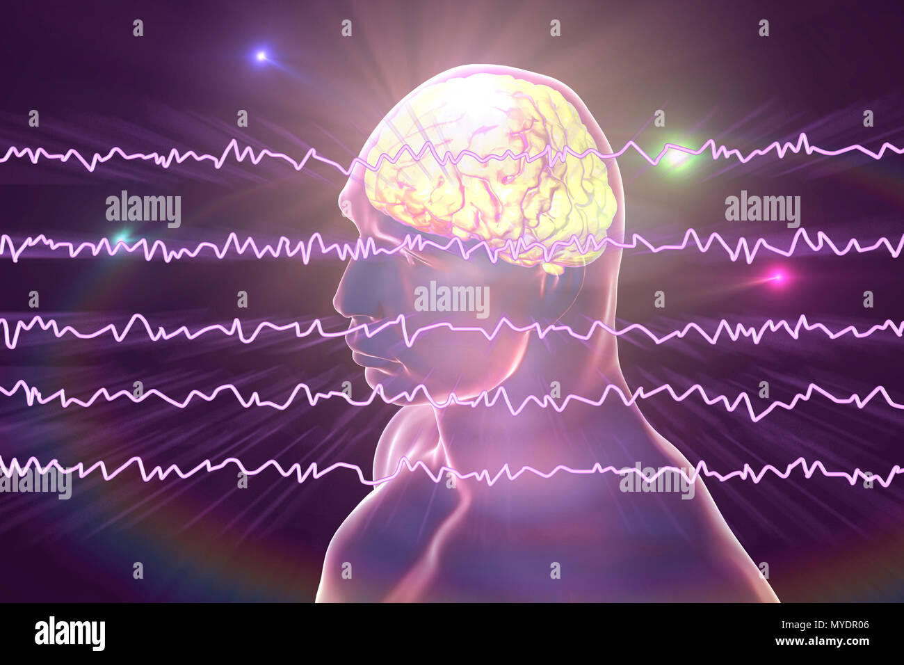 Brain and active brain waves, computer illustration. An electroencephalogram (EEG) measures electrical activity in the brain using electrodes attached to the scalp. Various disorders can be diagnosed by analysing EEG results. - Stock Image