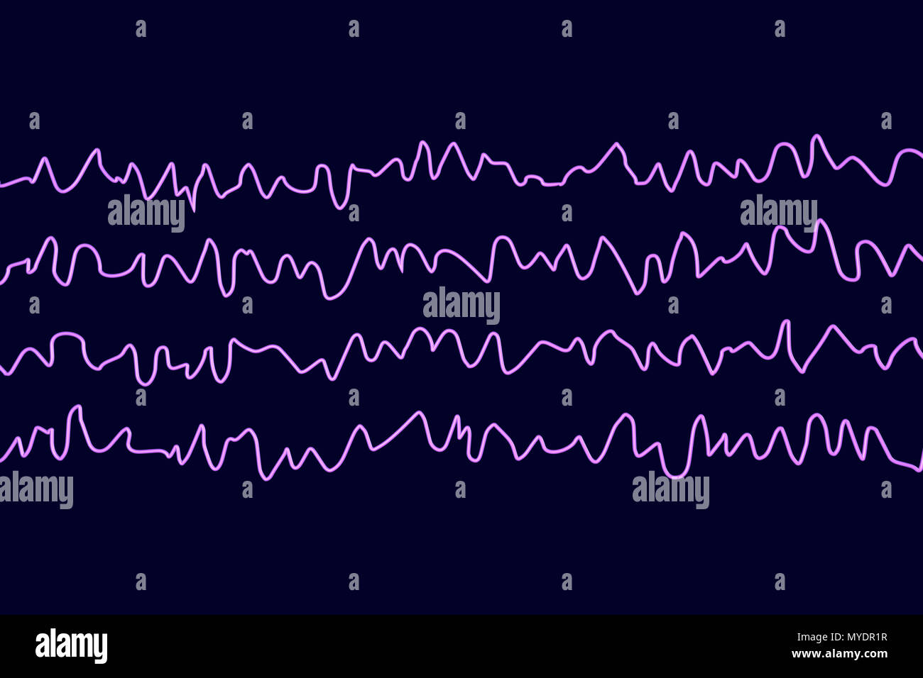 Brain waves in awake state during rest, computer illustration. An electroencephalogram (EEG) measures electrical activity in the brain using electrodes attached to the scalp. Various disorders can be diagnosed by analysing EEG results. - Stock Image
