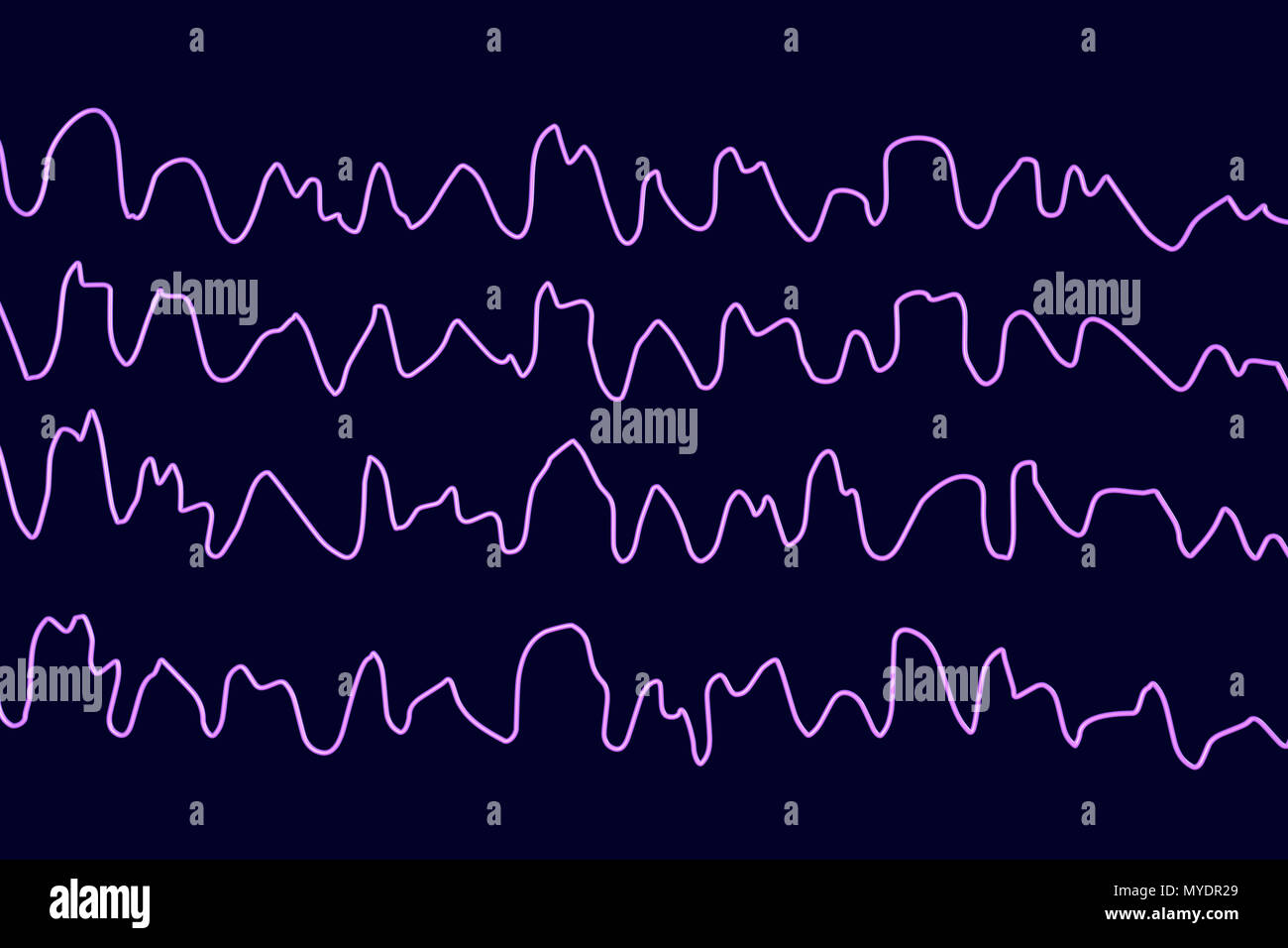 Brain waves during sleeping, computer illustration. An electroencephalogram (EEG) measures electrical activity in the brain using electrodes attached to the scalp. Various disorders can be diagnosed by analysing EEG results. - Stock Image