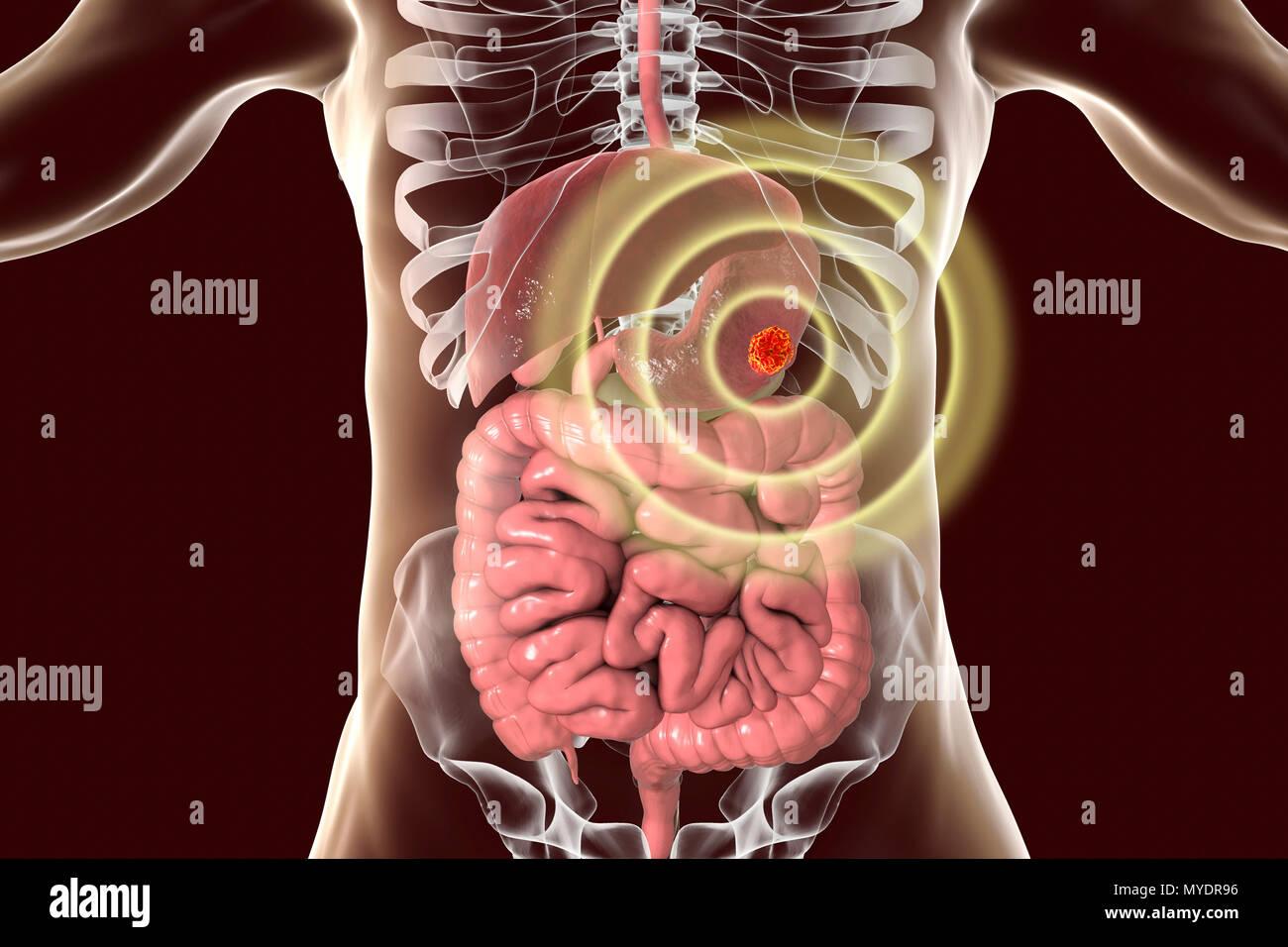 Anatomy Of An Illness Stock Photos Anatomy Of An Illness Stock