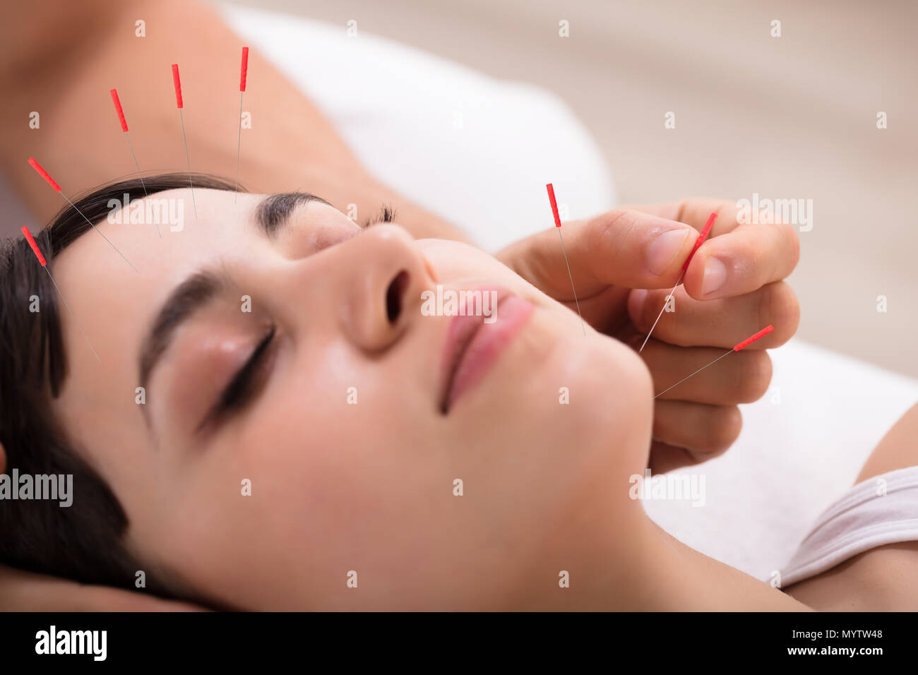 Beautiful Young Woman Getting Acupuncture Treatment In Beauty Spa Stock Photo