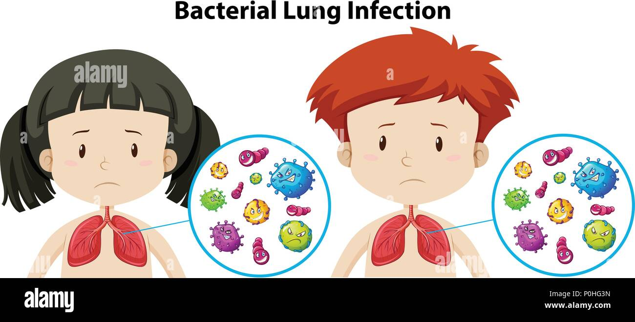 A Set of Bacterial Lung Infection illustration - Stock Vector