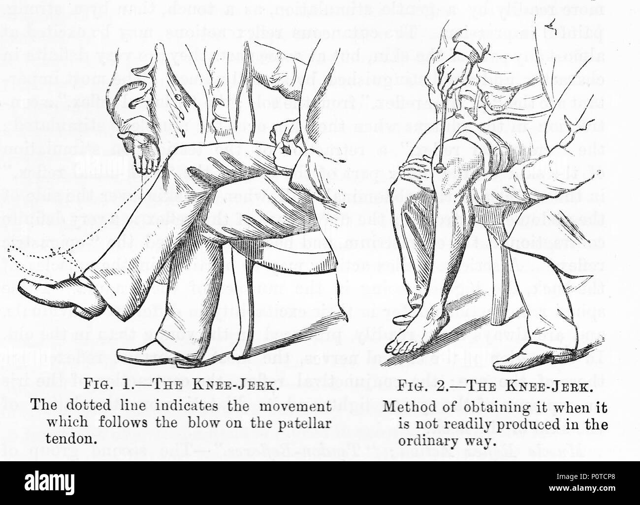 Knee Jerk Stock Photos & Knee Jerk Stock Images - Alamy