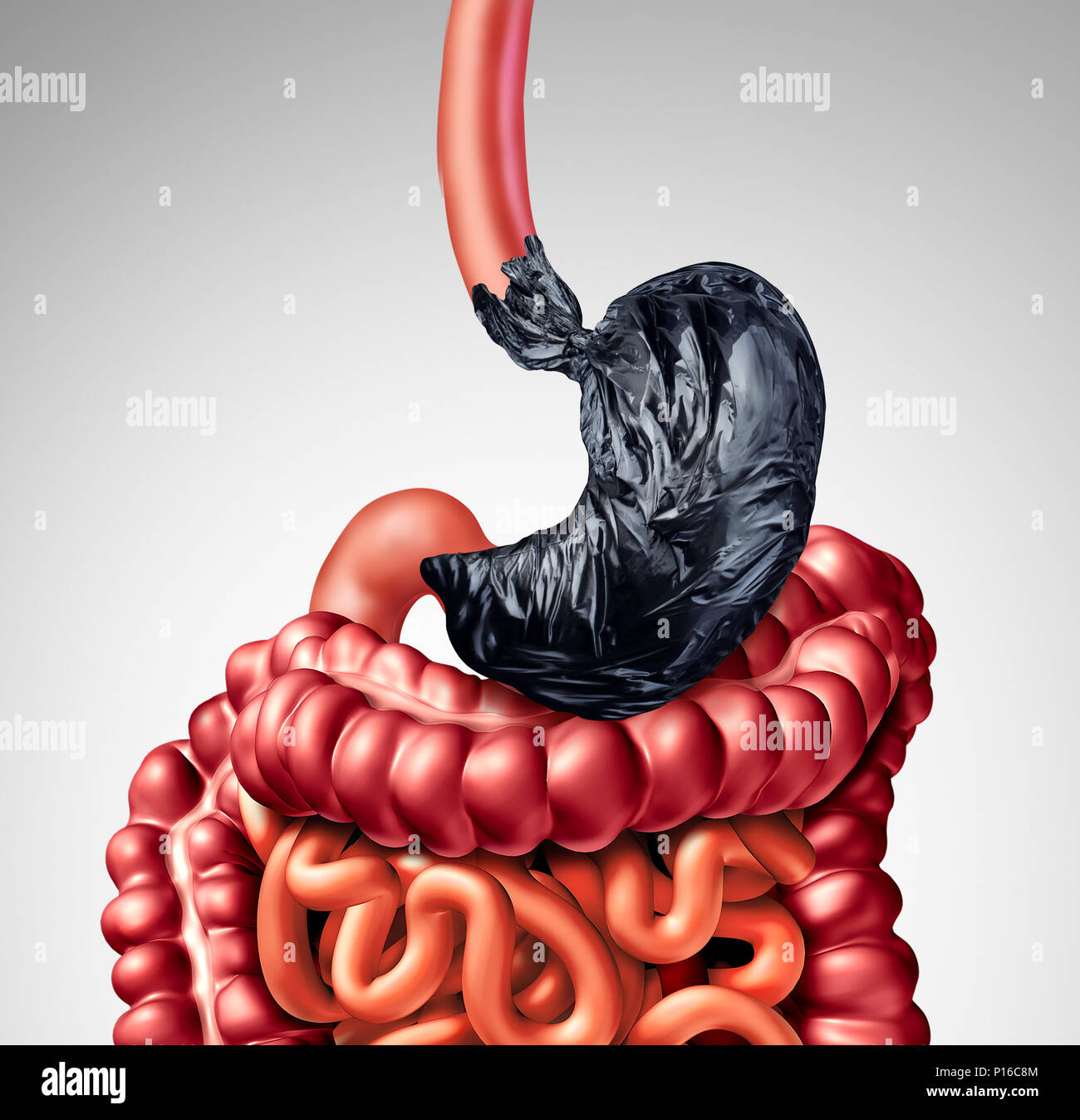 Human Digestion Problem As A Stomach Shaped As A Garbage Bag With
